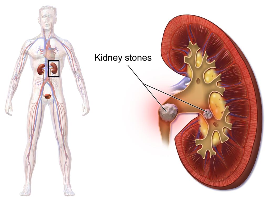 Blausen_0595_KidneyStones